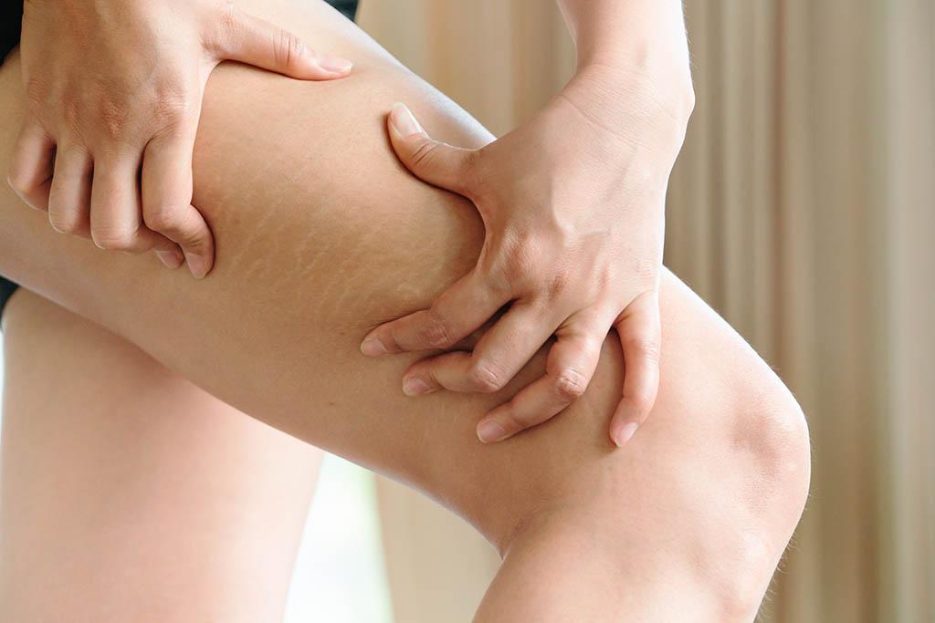 A perna direita de uma pessoa branca está em primeiro plano, em uma inclinação de coxa. Esta pessoa pressiona a região lateral evidenciando um local com concentração de gordura.