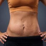 No centro da imagem está o torso de uma mulher bronzeada. Ela está virada para a frente, com as mãos na cintura e a barriga, onde há estrias e uma cicatriz de cesárea, exposta. Ela usa um top caramelo e um short preto, e o fundo da imagem é cinza.